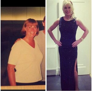 Beverley Coker before and after
